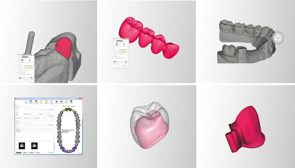3D Designer by Exocad