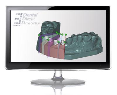 Dental Model Creator